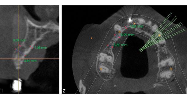Comparing graft techniques for the alveolar ridge prior to implant